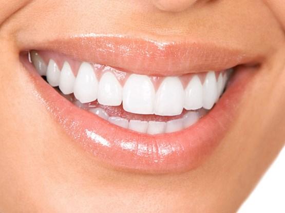 witte-tanden